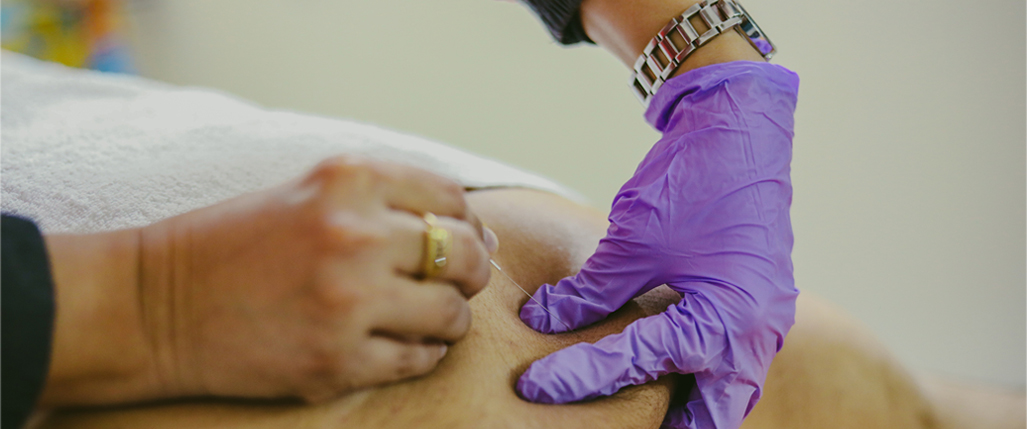 Manual Trigger Therapy & Dry Needling